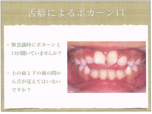 歯が生える時期 スライド